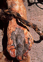 Mummified foot with its preserved skin and nails and a rope. Mummies such as this are found in several sites in the arid highlands of southern Peru, p...
