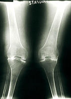 Arthritic knees. X-ray showing deformation of the knees caused by rheumatoid arthritis. The knees are bending in towards each other (knock-knee). The ...