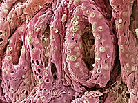 Ulcerative colitis. Coloured scanning electron micrograph (SEM) of goblet cells (green) on the mucosal surface of the bowel of a patient suffering fro...