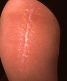 Post-operative scar on the upper left leg (side view) of a 33-year-old woman following an operation when she was 6 years old. The treatment involved t...