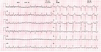 Heart disease. Electrocardiogram (ECG) of the heartbeat of a 76-year-old man with an atrial flutter and myocardial ischaemia. An ECG measures the pump...