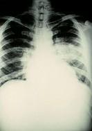 X-ray showing pulmonary oedema, an accumulation of fluid within the air spaces of the lung. It occurs when congestion is present as a result of heart ...