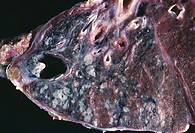 Tuberculosis. Gross clinical specimen of a section through a lung in a tuberculosis (TB) infection. A TB infection results from inhaling Mycobacterium...