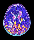 ´Multiple sclerosis.  Coloured  magnetic  resonance imaging  (MRI) scan of the brain of a ten year old girl suffering from multiple sclerosis (MS).   ...