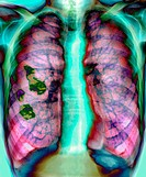 ´Pleural plaque.  Coloured chest X-ray of a patient with  occupational   asbestos   exposure,  showing pleural plaque (dark green) on the  right    lu...