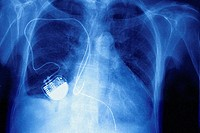 PACEMAKER<BR>X-ray, frontal view.