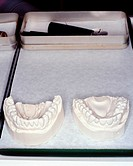 Plaster cast teeth
