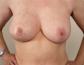 Breast reconstruction. Semi-permanent make-up has been applied to the right breast (left) to make the nipple and areola look more natural following br...
