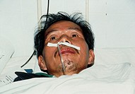 Tuberculosis. Man with breathing difficulties due to pulmonary tuberculosis (TB) being supplied with oxygen through a nasal tube. Tuberculosis is caus...