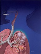 The effects of smoking: chronic lung disease.