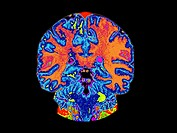 Color enhanced coronal (frontal) view of what a normal brain looks like. This image was created by Magnetic Resonance Imaging (MRI) technique. MRI bas...