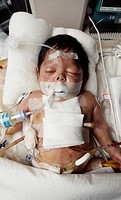 Heart surgery patient. Baby in intensive care after open heart surgery. Open heart surgery may be needed to replace defective heart valves, to repair ...