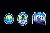 Opioid receptors. Three coloured Positron Emission Tomography (PET) scans showing the asymmetric distribution of opioid receptors in the human brain. ...