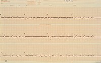 Electrocardiograph (ECG) read-out of a normal (control) heart.