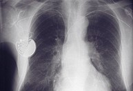 X-ray of chest showing pacemaker