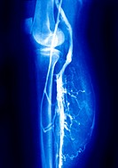 Angiography of the veins near the knee and lower leg.