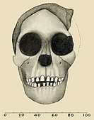 Taung Child skull. Artwork, from 1931, showing the appearance and size (scale in millimetres) of the fossil skull discovered by Dart in Taung, South A...