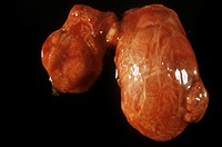 Goitre. Gross specimen of a thyroid gland affected by goitre, showing the asymmetrical swelling of the gland. Goitre is often due to a deficiency of t...