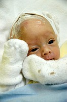 Premature baby. The tube attached to her head is administering medicine into a vein. The baby´s arm veins are too thin and fragile to be perforated by...