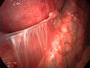 Displaced IUD contraceptive. Endoscope view of the thread (centre left to upper centre) of an intrauterine contraceptive device (IUD) penetrating thro...