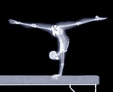 Gymnast. Computer artwork based on an X-ray of a gymnast performing a split handstand on a beam.
