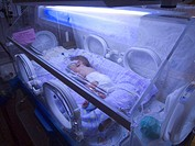 One day old newborn in the neonatal intensive care unit (NICU), delivered by cesarean section 5-7 weeks premature. The baby has physiologic jaundice a...