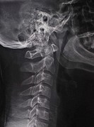 X-ray of the cervical spine (c-spine), side view, of a 29 year old male who was in a car accident and suffered whiplash injury. The x-ray shows straig...