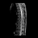 This sagital (from the side) MRI image shows a beautifully normal example of the thoracic spine and thoracic spinal cord down to the level of the conu...