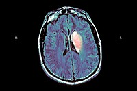 CEREBROVASCULAR NEUROL. DISEASE<BR>Cerebrovascular-disease-MRI-1/2  Recent cerebrovascular accident of the left thalamus. Colorized MRI. Lesion is sho...