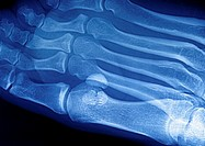 PLANTAR WART<BR> <BR>Plantar warts - foot x-ray.  Two warts between the big toe and the index of the right foot.