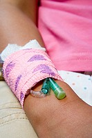 Girl with a catheter in her arm