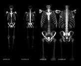 Composite set of images from a whole body nuclear medicine bone scan showing the normal appearance of the skeleton on this type of study.