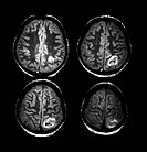 This composite of four axial cross-sectional MRI images of the brain shows the typical appearance of a venous infarction which is parasagital in locat...