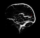 This lateral from the side view from an intracranial venogram shows the presence of a persistent fetal dural sinus called the falcine sinus red arrow ...