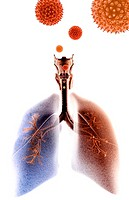 Asthma (thumbnail)