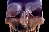 The bones of the face (thumbnail)