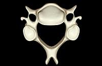 Cervical vertebra