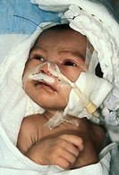 Guatemalan infant after surgery for a cleft palate and lip, a birth defect in which roof of the mouth palate never completely fuses leaving a gap clef...