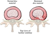 Illustration of a lumbar paracentral herniated disc: comparison of a normal lumbar vertebral disc left and a right paracentral herniated disc with ner...