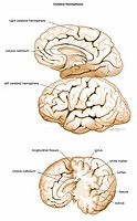 Medical illustration of the basic structures of the cerebral hemispheres, with labels Shown are lateral, medial sagittal, and anterolateral views of t...