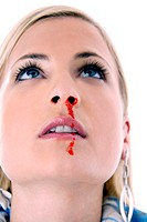 Woman with a nosebleed