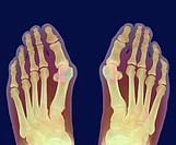 Bunions  Coloured X-ray of bunions hallux vulgas on the feet of a 69 year old woman  Bunions shown here as pink and green projections are swellings of...