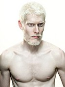 Portrait of an albino man