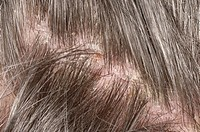 Psoriasis on the scalp of a 61 year old man. The flaking skin is causing dandruff. Psoriasis occurs when new skin cells are produced around ten times ...