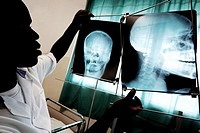 Doctor looking at X_rays. This doctor is analysing X_ray films of a patient with a head fracture. Medical X_rays are used for diagnosing conditions of...