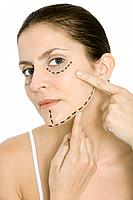 Woman pointing at plastic surgery markings on face, looking at camera