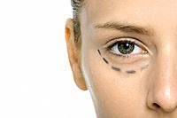 Young woman with plastic surgery markings under eye, cropped view (thumbnail)