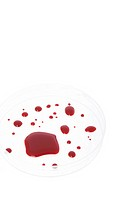 Blood on a petri dish