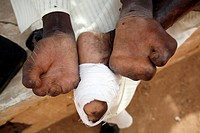 The damaged hands and feet of a man suffering from leprosy.