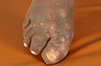 A patients foot is reponding well to medical treatment for mycetoma. There are several clinical treatments available for this disease. They include su...